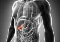 De ce apar calculii biliari și ce trebuie să mâncăm dacă avem litiază biliară