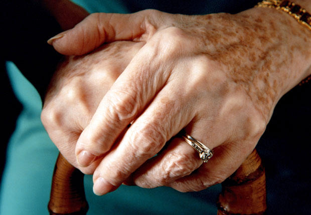 Cum prevenim îmbătrâniera mâinilor. Sunt primele care ne dau de gol vârsta