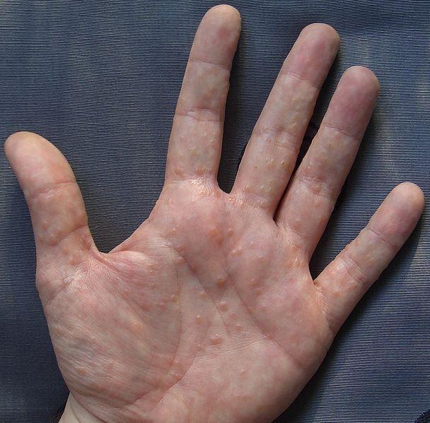 10 semne timpurii și adesea ignorate ale cancerului de pancreas