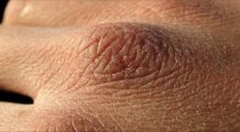 Cinci sfaturi de la specialiaști pentru îngrijirea pielii în sezonul rece
