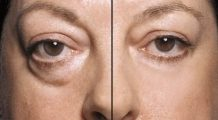 Cum să scapi de cearcăne și de pungile de sub ochi în 15 minute cu 2 ingrediente pe care le ai sigur în bucătărie