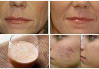 Elimină ridurile, vindecă acneea și previne îmbătrânirea prematură. Cel mai ieftin aliment face minuni pentru piele