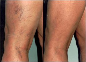 Cinci mituri despre vasele sparte: Cum scapi de inestetica problemă de pe picioare