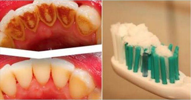 Scapi de respirația urât mirositoare și de tartru înlocuind pasta de dinți cu acest amestec natural