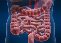 """Pacientă cu cancer de colon: """"Am avut acest simptom o jumătate de an, dar nu l-am băgat în seamă"""""""