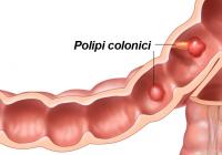 Polipii intestinali: cum îi depistezi și ce să faci ca să nu se transforme în cancer
