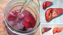 Plante care elimină grăsimile din ficat și regenerează celulele hepatice