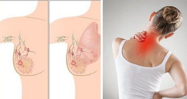 Autoexaminarea sânilor. Cum se simte o umflătură canceroasă?