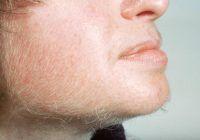 Cinci cauze nebănuite ale creșterii părului pe față la femei. Cum scapi definitiv de pilozitatea excesivă