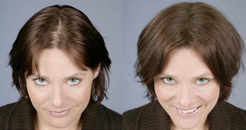Cele mai eficiente tratamente împotriva căderii părului