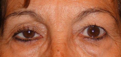"""Acest defect al ochilor poate fi un simptom al cancerului de plămâni. Boli care se """"citesc pe față"""