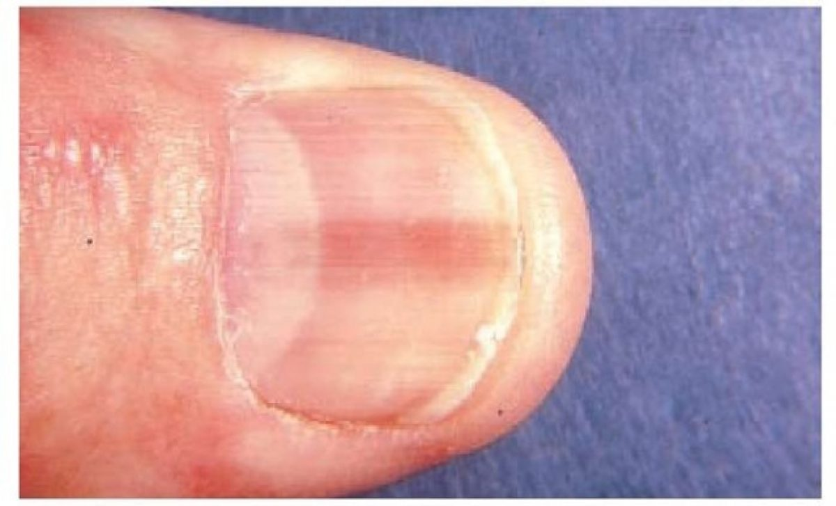 cancer de unghii