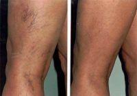 """Vasele de sânge sparte pot fi """"șterse"""" definitiv de pe piele. Cea mai eficientă soluție și cea mai bună perioadă să scăpați de ele"""