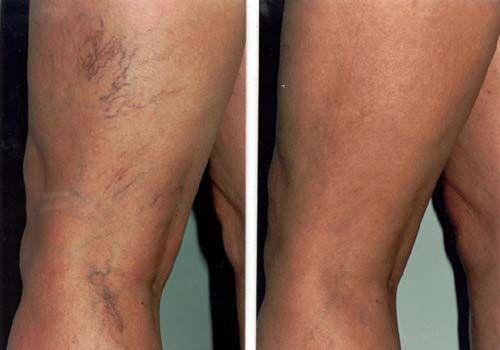 venele din picioare mai vizibile