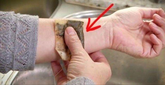 Extensia tendonului in tratamentul articula?iei genunchiului