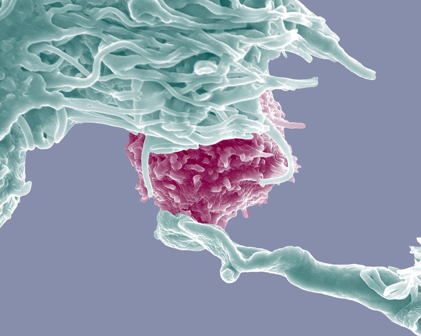 Legătura dintre bacteriile din intestine și lupta cu cancerul