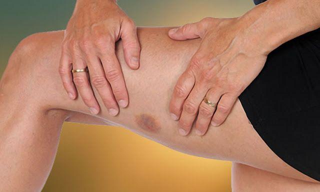 Semne de alarmă care anunță leucemia sau alte boli ale sângelui