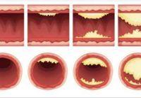 Cinci alimente care curăță arterele de depozitele de grăsime și previn infarctul