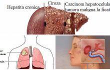 Cele mai periculoase boli care nu au simptome. Le poți avea ani întregi fără să știi