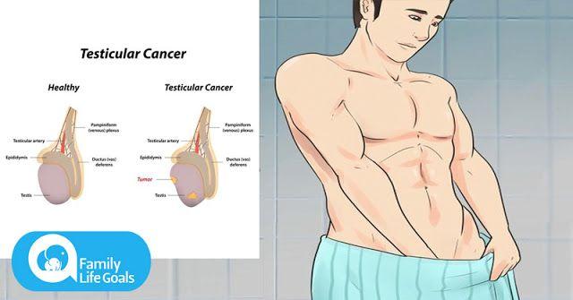 Trei semne ale cancerului testicular despre care bărbații sunt prea jenați să vorbească