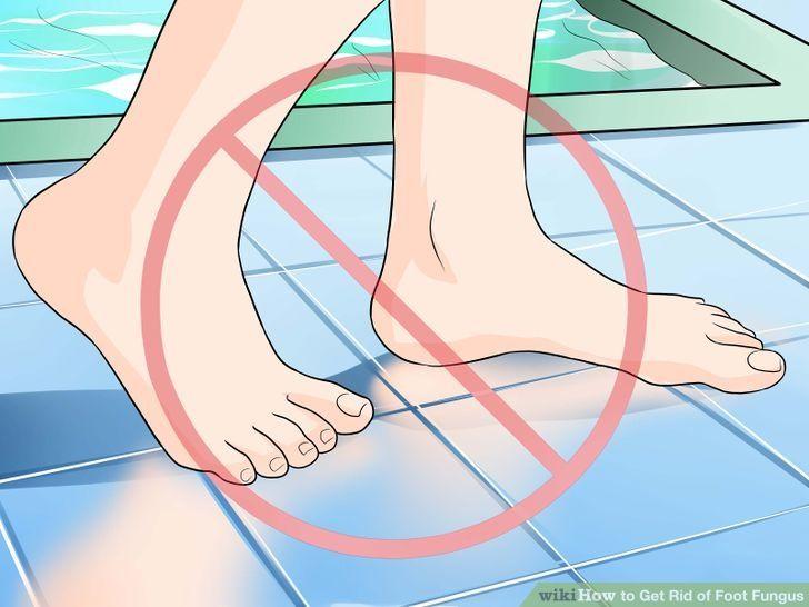 Ciuperca piciorului, boala dermatologică cel mai ușor de luat