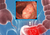 Patru semne ale cancerului de colon pe care majoritatea oamenilor le ignoră