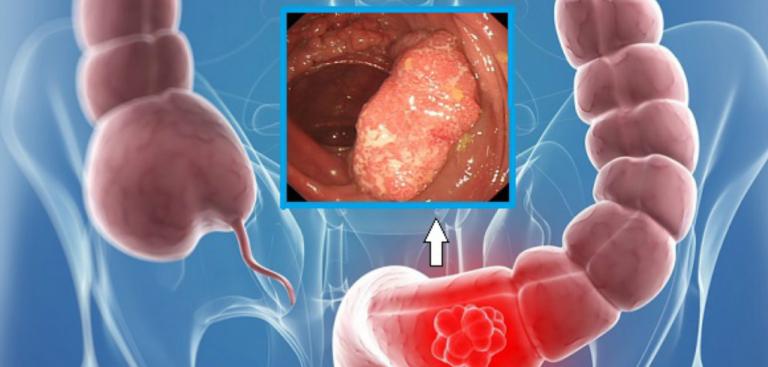 Primele simptome ale cancerului de colon și analizele cu care poți descoperi boala din timp