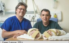 Medicii au realizat cu succes primul transplant dublu de mâini