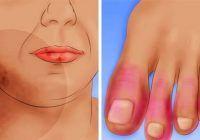 O singură boală distruge plămânii, rinichii, oasele și pielea. Cum o rcunoști?