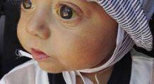 La doar 7 luni, Marinel are mare nevoie de transplant de ficat pentru a supravieţui