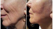 Tratamentul revoluționar recomandat de dr. Oz care te scapă de acnee, riduri și cicatrice