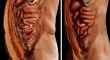 Două ingrediente care topesc depozitele de grăsime și elimină paraziții intestinali