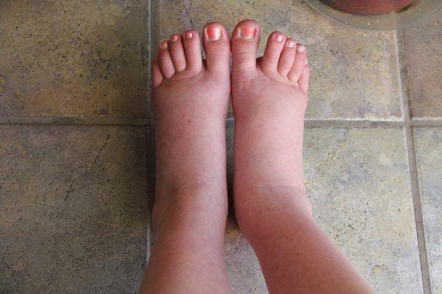 picioarele umflate de roșeață
