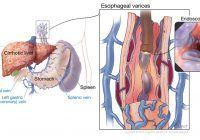 De ce apar varice pe esofag și care sunt simptomele lor?