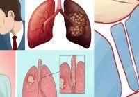 Opt semne timpurii ale cancerului de plămâni