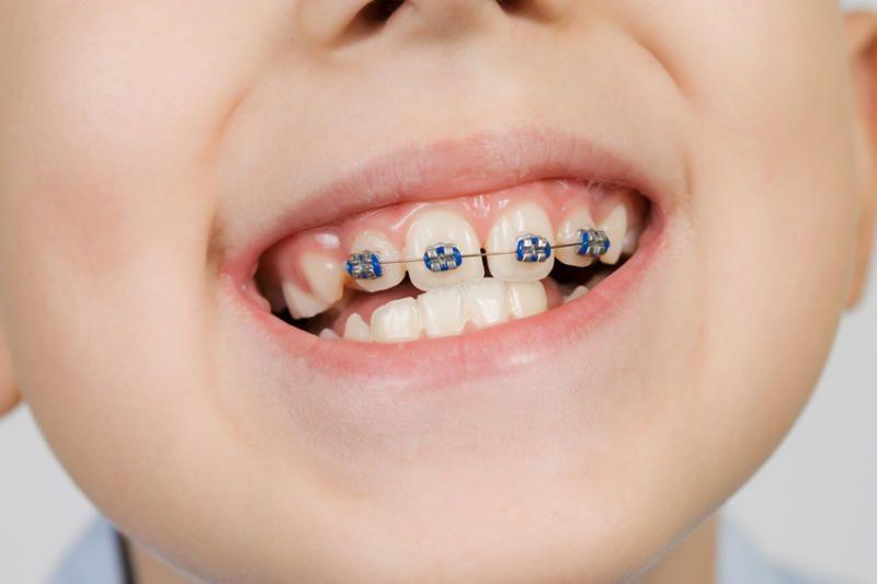 Bani de la primărie pentru aparate dentare destinate copiilor. Ce condiții trebuie să îndeplinească doritorii