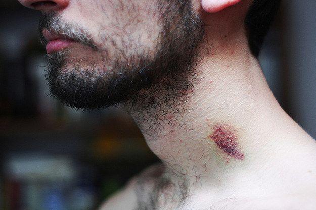 Un tânăr a murit la câteva ore după ce a fost mușcat de gât de iubita sa. Ce au descoperit medicii