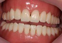 Tot ce trebuie să știi despre protezele dentare: cum le alegi, cât durează perioada de acomodare și cum se îngrijesc corect