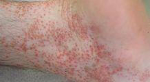 Purpura, o boală parșivă greu de tratat