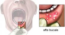 Atenție! Aftele bucale pot anunța lipsa unor vitamine, imunitate scăzută dar și boli grave