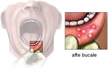 6 remedii pentru tratarea aftelor bucale
