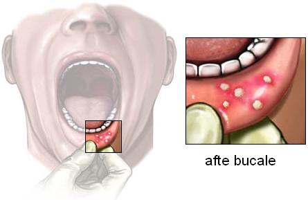 Aftele bucale pot anunța lipsa unor vitamine, imunitate scăzută, dar și boli grave