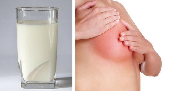 Lactatele sunt cancerigene? Un nutriționist român explică