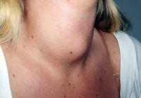 Cât te îngrași, de fapt, din cauza tiroidei?