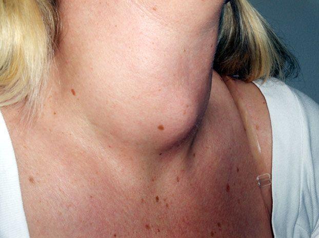 Lipsa iodului și gușa tiroidiană. În ce zone ale țării se întâlnesc, cel mai des, boli de tiroidă