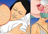 10 Semne de alarmă că ești infectat cu HIV