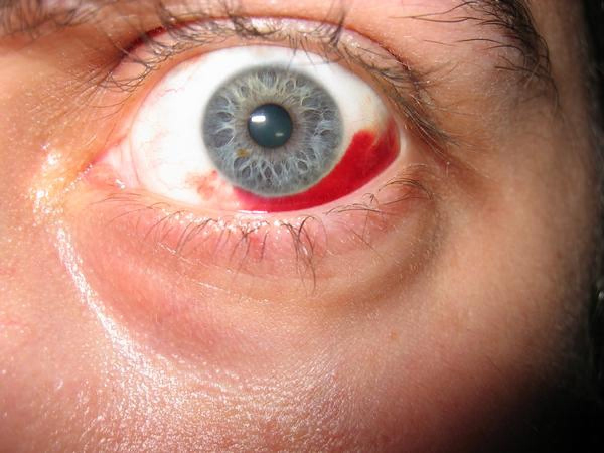 vedere și hipertensiune arterială hrană care îmbunătățește vederea