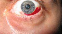 Ce se întâmplă cu ochii când tensiunea arterială e prea mică sau prea mare?