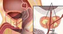 12 semne ale cancerului de prostată, ignorate de bărbați