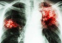 Tuberculoza poate fi descoperită în doar câteva ore printr-o simplă analiză de sânge